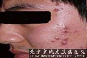 皮肤科医生谈怎样治疗青春