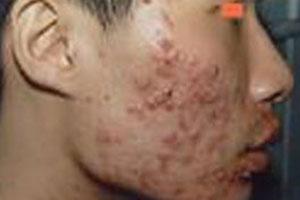 治疗面部痤疮真的那么难吗