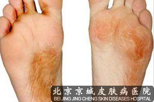 手足癣发生如何治疗
