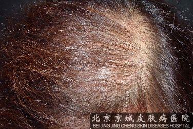 脱发的症状是什么