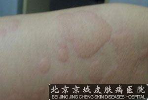 蕁 麻疹 治療 寒冷