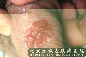 梅毒潜伏期症状
