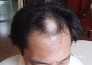 常见的脱发类型有哪些