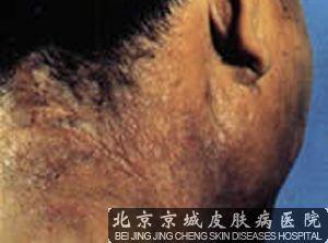 北京治疗神经性皮炎哪家医院好
