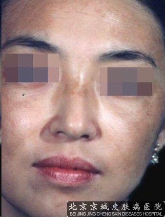 黄褐斑的症状具体有哪些呢