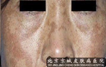 黄褐斑的症状表现有哪些