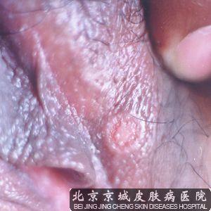 梅毒的早期症状图片
