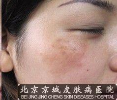 面部黄褐斑有哪些特点呢