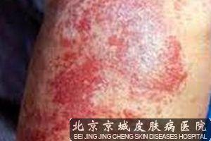 湿疹的发生部位有哪些