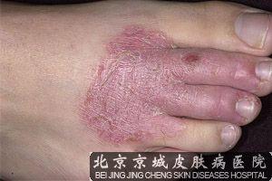 皮肤湿疹传染吗