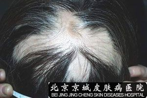 斑秃原因是什么