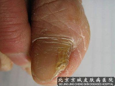 灰指甲初期治疗方法