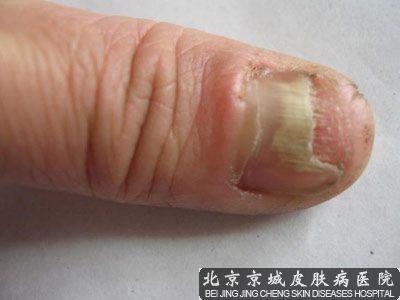 怎样治灰指甲