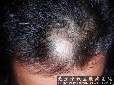 北京治疗斑秃