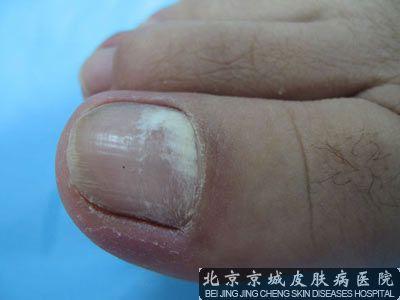 指甲有白斑怎么回事