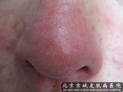 红鼻子治疗
