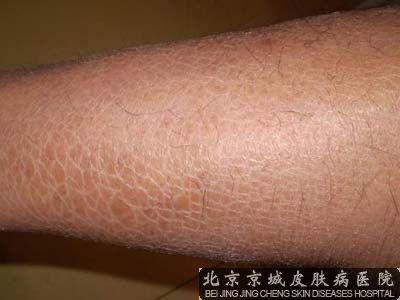 冬天腿上皮肤干燥