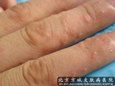 北京市哪家医院看汗疱疹比较好