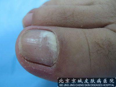 北京那个医院治疗甲沟炎