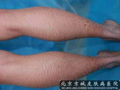 鱼鳞皮肤怎么治疗