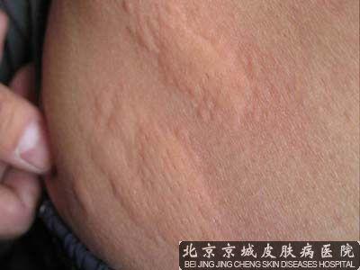 胆碱能性皮麻疹