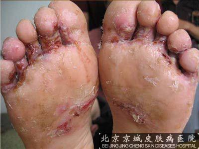 水泡型脚气怎么根治