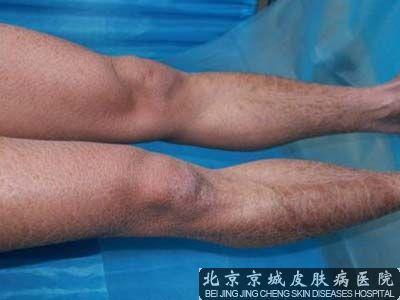鱼鳞癣病的治疗方法