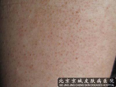 激光治疗鸡皮肤