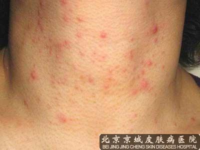 螨虫皮肤能彻底治好吗
