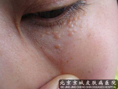 面部汗管瘤