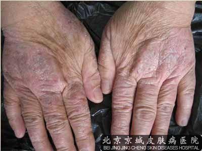 甲癣,真菌和湿疹合并感染怎么治