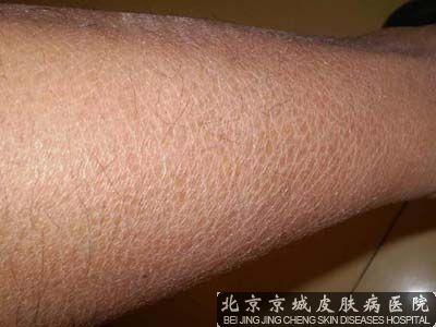 北京鱼鳞癣病