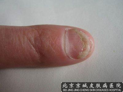 北京哪个医院灰指甲