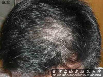 头发掉的厉害怎么办