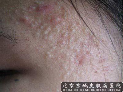 眉毛起痘痘处皮肤僵硬有疤痕
