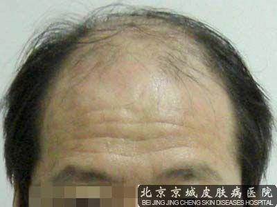 头表皮不长头发了怎么办