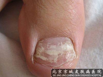 甲癣是灰指甲吗