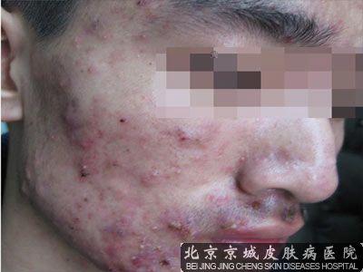 脸上长囊肿性痤疮怎么办