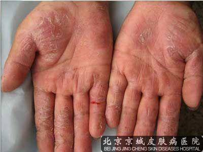 身上出湿疹怎么治疗