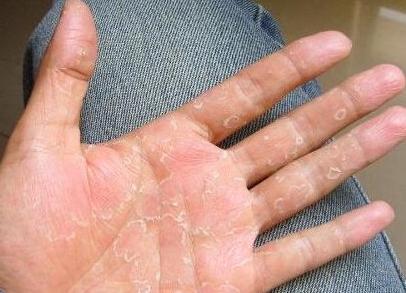 冬天手脱皮怎么办
