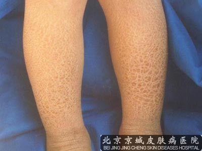 皮肤干燥光痒怎么办