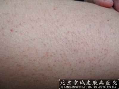 皮肤淀粉样变性治疗