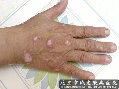指甲盖上有白斑点