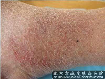 北京去湿疹哪好