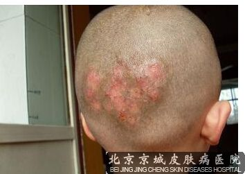 头皮癣较好治疗方法