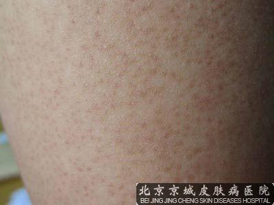 北京皮肤淀粉样变与皮肤角化的治疗