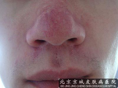怎么去除红鼻子