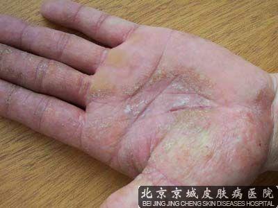 手脱皮治疗方法