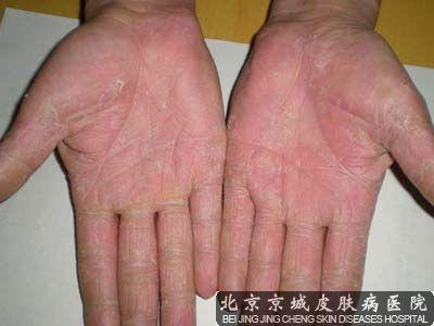 手蜕皮是怎么回事