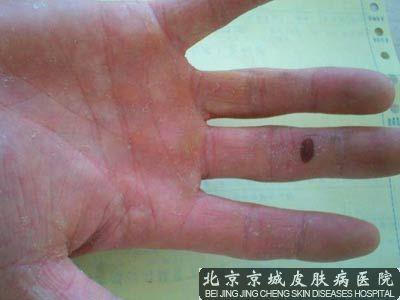 手癣有效治疗方法